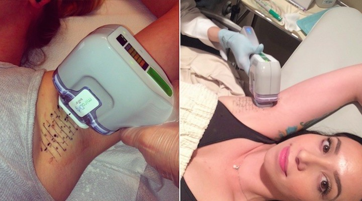 Get Rid of Your Underarm Hair With A Microwave